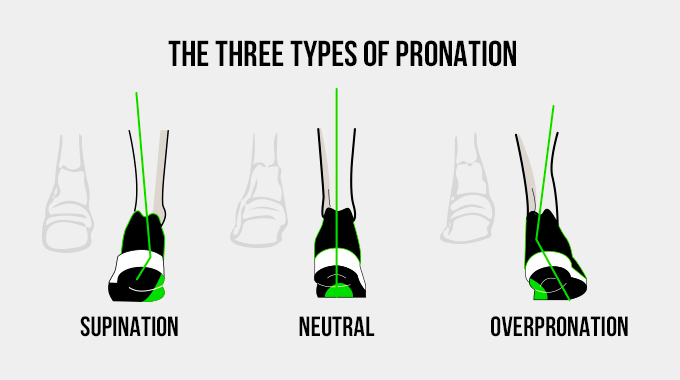 three types of pronation
